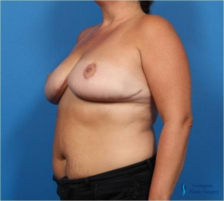 Breast Reduction: Patient 4 - After Image 4