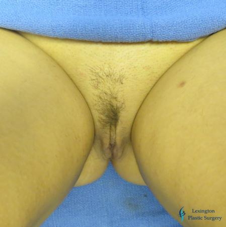 Labiaplasty: Patient 1 - After Image