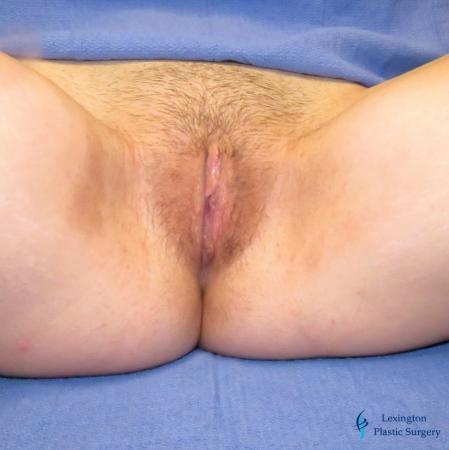 Labiaplasty: Patient 5 - After Image 2