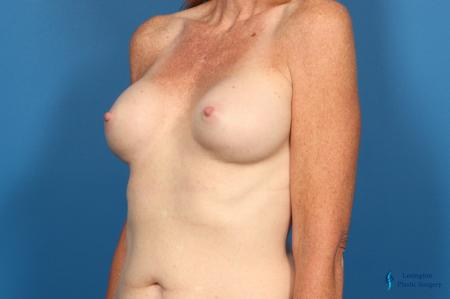 Breast Implant Exchange: Patient 1 - Before Image 4