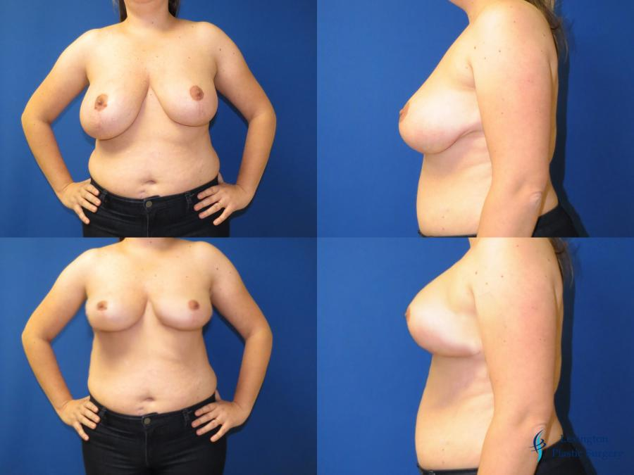Breast Reduction: Patient 1 - Before and After Image 1