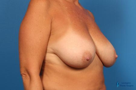 Breast Reduction: Patient 7 - Before Image 4