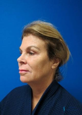 Facelift & Neck Lift: Patient 2 - Before Image 2