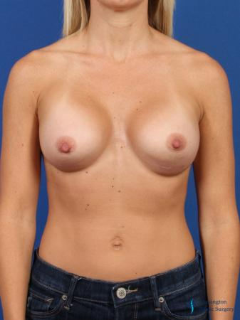 Breast Augmentation: Patient 3 - After Image