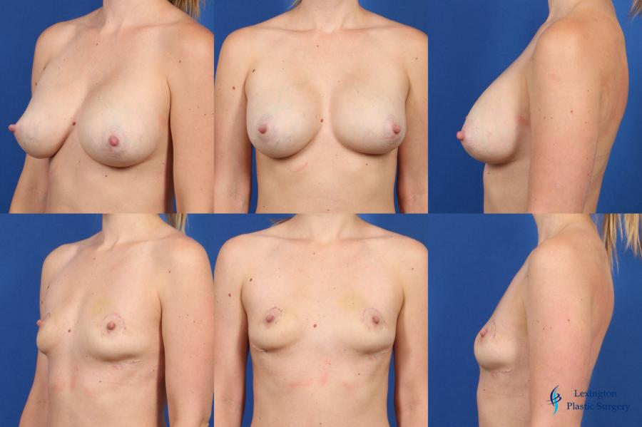 Breast Implant Removal With Lift: Patient 1 - Before and After Image 1