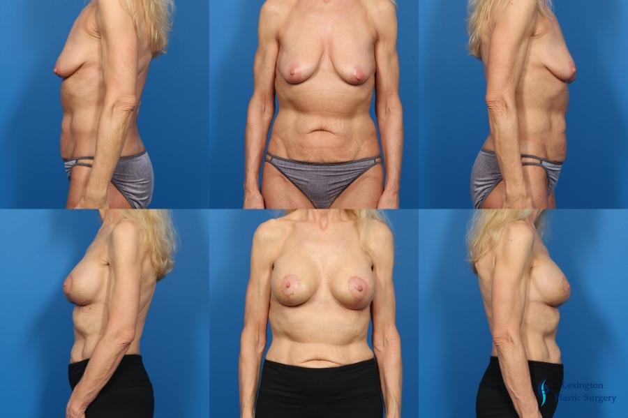 Breast Augmentation With Lift: Patient 3 - Before and After Image