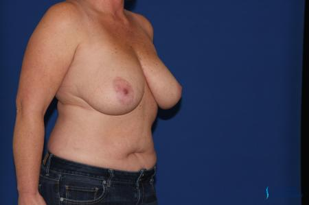 Breast Reduction: Patient 3 - Before Image 5