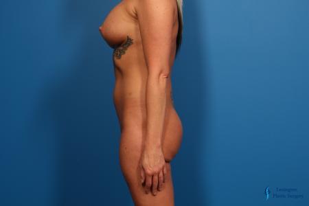 Brazilian Butt Lift: Patient 1 - Before Image 4