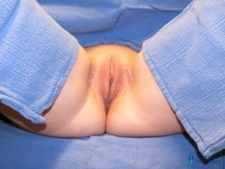 Labiaplasty: Patient 15 - Before and After Image 2