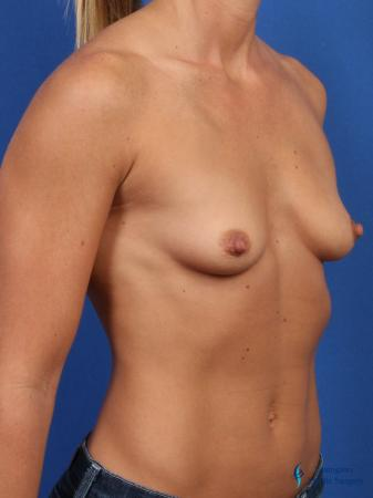 Breast Augmentation: Patient 7 - Before Image 2
