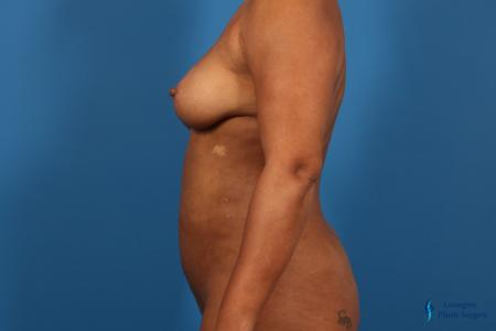 Liposuction: Patient 1 - After Image 5