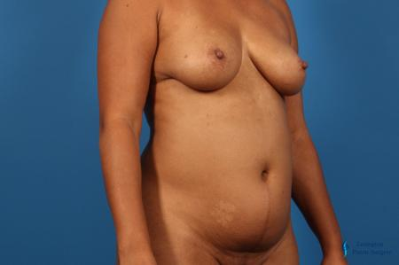 Liposuction: Patient 1 - Before Image 2