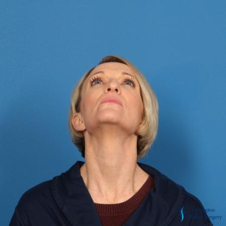 Rhinoplasty Revision: Patient 1 - Before Image 3