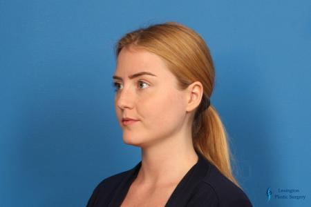 Rhinoplasty: Patient 1 - Before Image 2