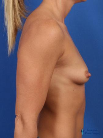 Breast Augmentation: Patient 3 - Before and After Image 2