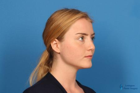 Chin Augmentation: Patient 1 - Before and After Image 6