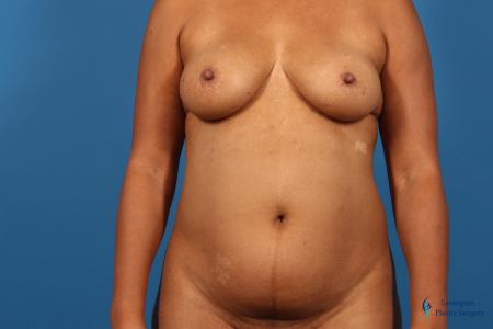 Liposuction: Patient 1 - Before Image 1