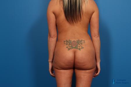 Brazilian Butt Lift: Patient 1 - After Image 5