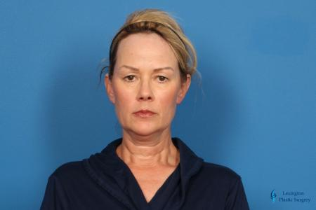 Facelift & Neck Lift: Patient 4 - Before Image