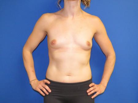 Breast Augmentation: Patient 2 - Before Image 3