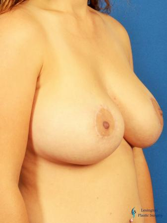 Breast Lift And Augmentation: Patient 2 - After Image 2