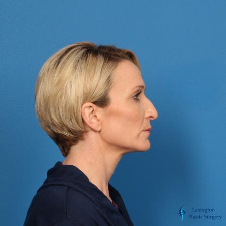 Rhinoplasty Revision: Patient 1 - Before Image 5