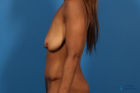 Abdominoplasty: Patient 2 - After Image 2