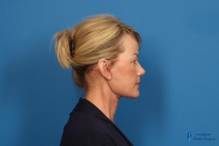 Facelift & Neck Lift: Patient 4 - After Image 3