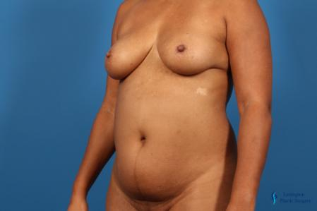 Liposuction: Patient 1 - Before Image 4