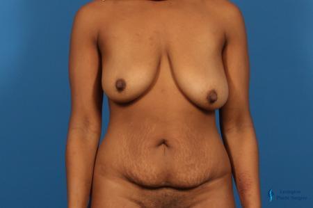 Abdominoplasty: Patient 2 - Before Image 1