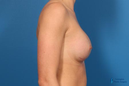 Breast Augmentation: Patient 10 - After Image 3