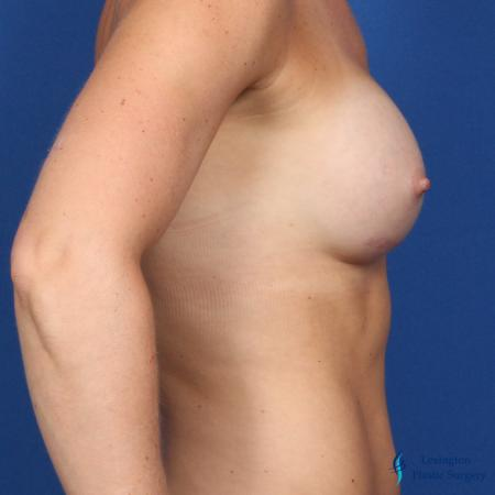 Breast Augmentation: Patient 5 - After Image 5