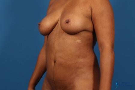 Liposuction: Patient 1 - After Image 4