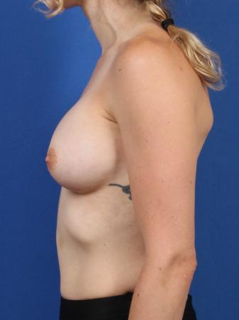 Breast Augmentation: Patient 2 - After Image 6
