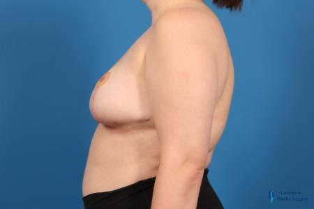 Breast Reduction: Patient 6 - After Image 3
