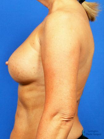 Breast Augmentation With Lift: Patient 1 - After Image 5