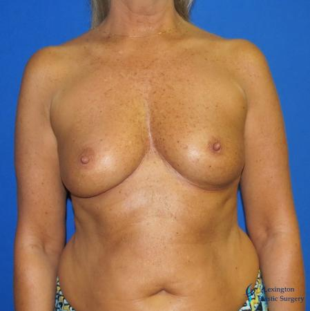 Breast Augmentation With Lift: Patient 1 - Before Image 3