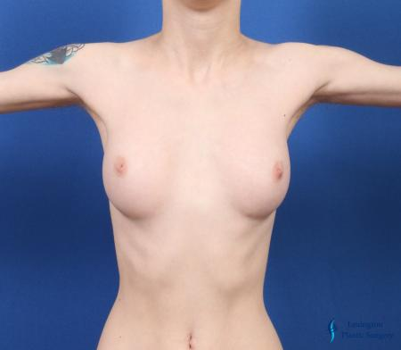 Top Surgery - Female To Male: Patient 4 - Before Image 4