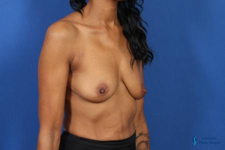 Breast Augmentation: Patient 8 - Before Image 2