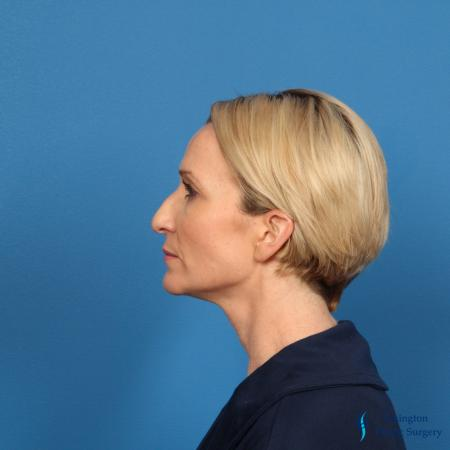 Rhinoplasty Revision: Patient 1 - Before and After Image 7