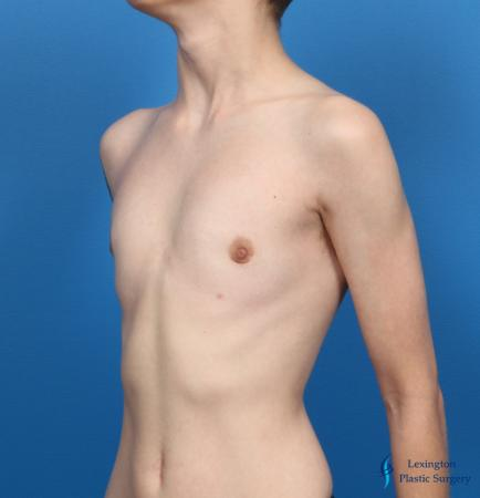 Top Surgery - Female To Male: Patient 4 - After Image 6