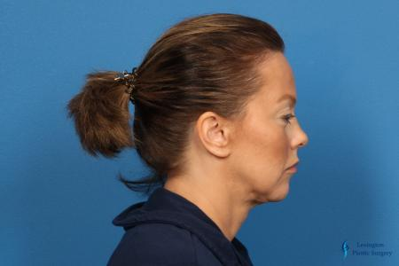 Facelift & Neck Lift: Patient 5 - Before and After Image 5