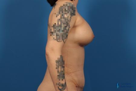 Abdominoplasty: Patient 1 - After Image 3