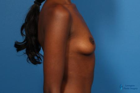 Breast Augmentation: Patient 9 - Before and After Image 5