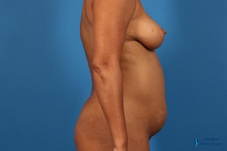 Liposuction: Patient 1 - Before Image 3