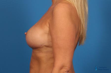 Breast Reduction: Patient 7 - After Image 3