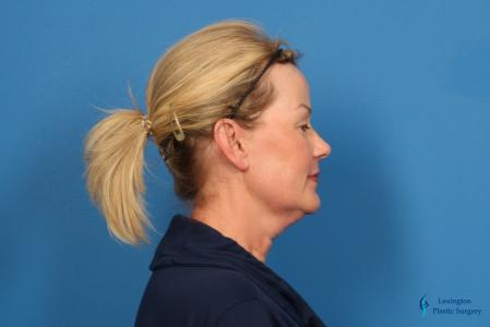 Facelift & Neck Lift: Patient 4 - Before Image 3