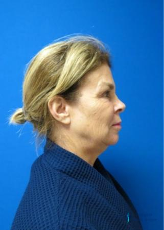 Facelift & Neck Lift: Patient 2 - Before and After Image 5