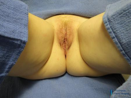 Labiaplasty: Patient 8 - After Image