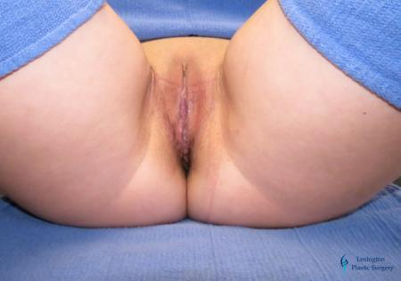 Labiaplasty: Patient 11 - After Image 1